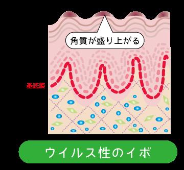 ウイルス性疣贅(ゆうぜい)イボ★仙臺薬局
