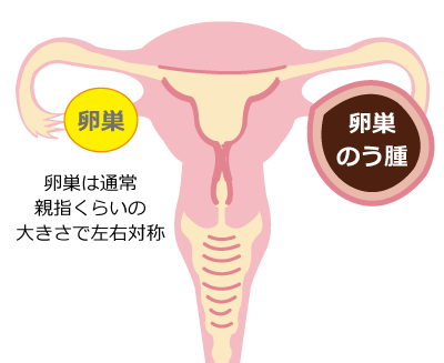卵巣嚢腫★仙臺薬局におまかせください